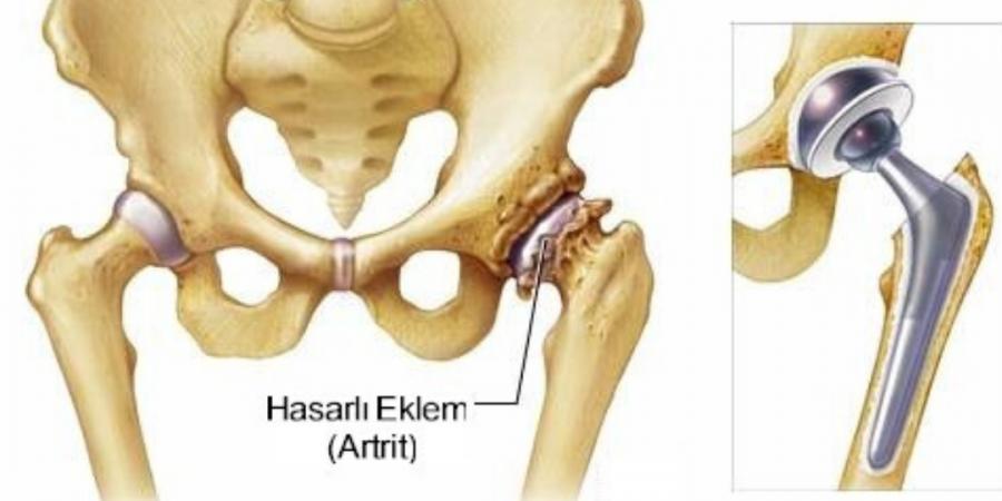 Kalça protezi ameliyatı